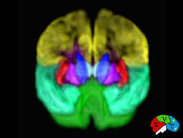 Laboratory of Neuro Imaging